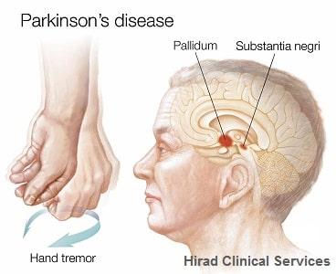 نگهداری از سالمند پارکینسونی