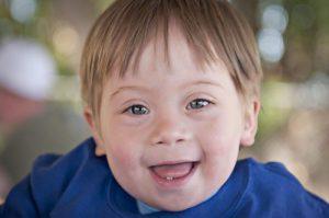 پرستاری از کودک معلول ذهنی در منزل